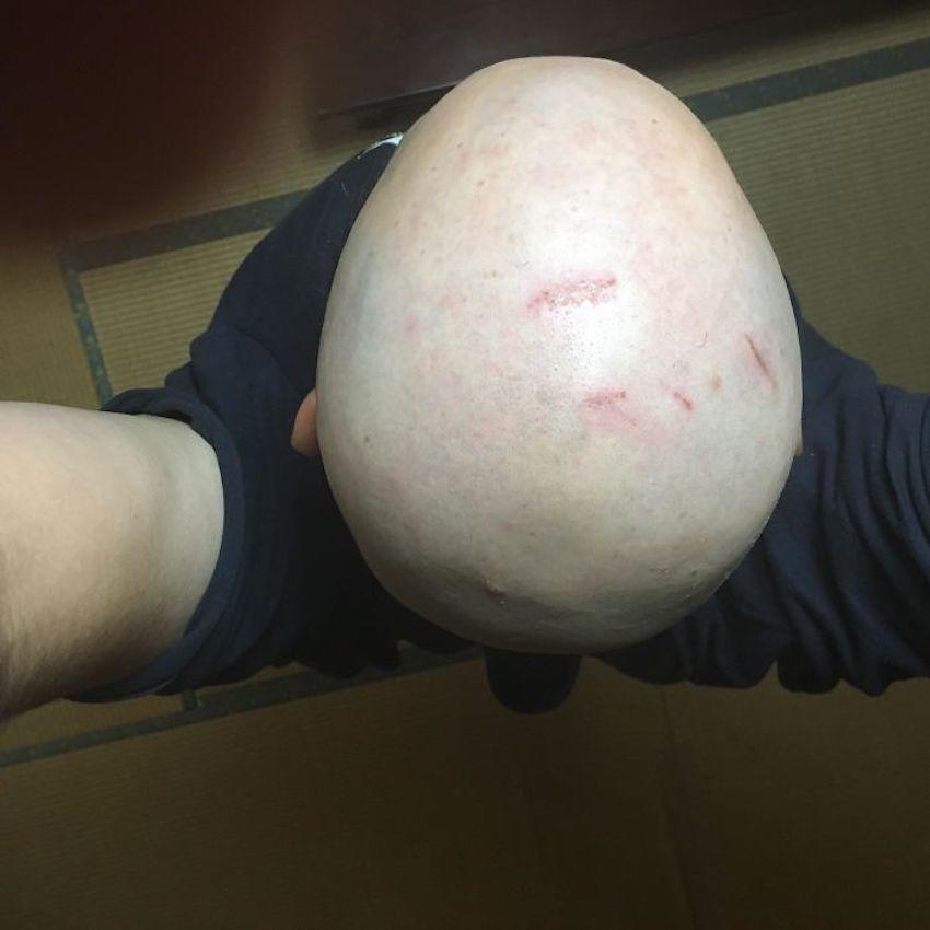 bald head hit too many beams
