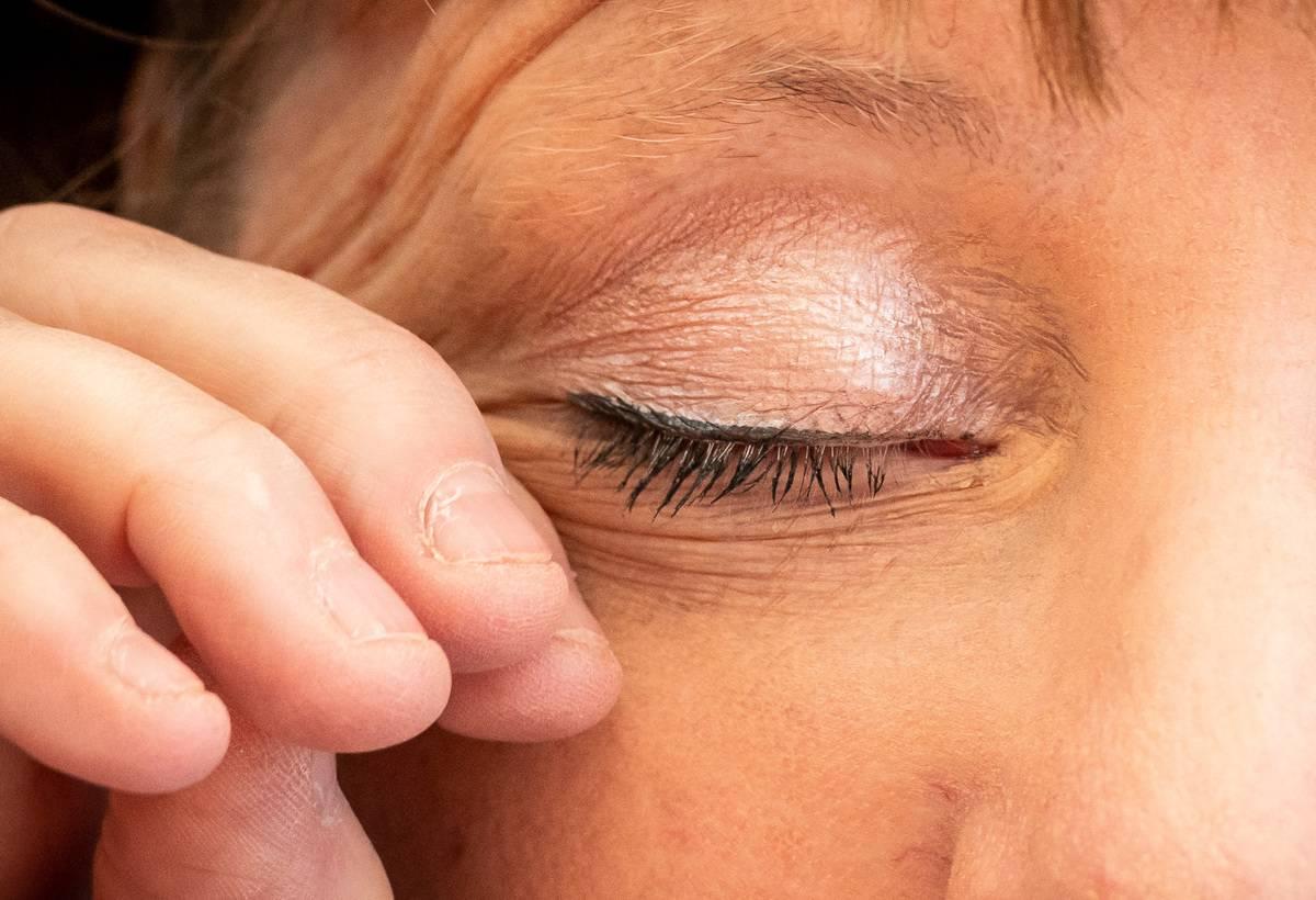 A woman rubs her eye.